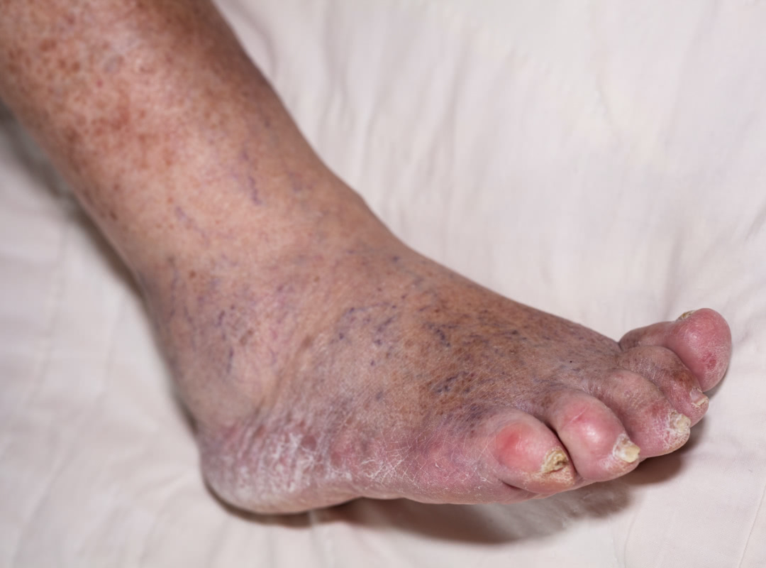 Image of a persons foot with symptons of Diabetes