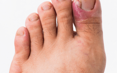 Why Do Ingrown Toenails Keep Coming Back? We've Got Your Permanent Solution