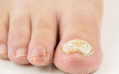 How To Stop Your Fungal Nail Infection Spreading Through Your Family