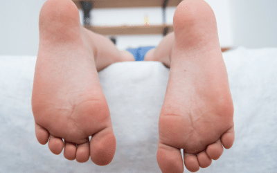 Should I Be Worried About My Child's Flat Feet?